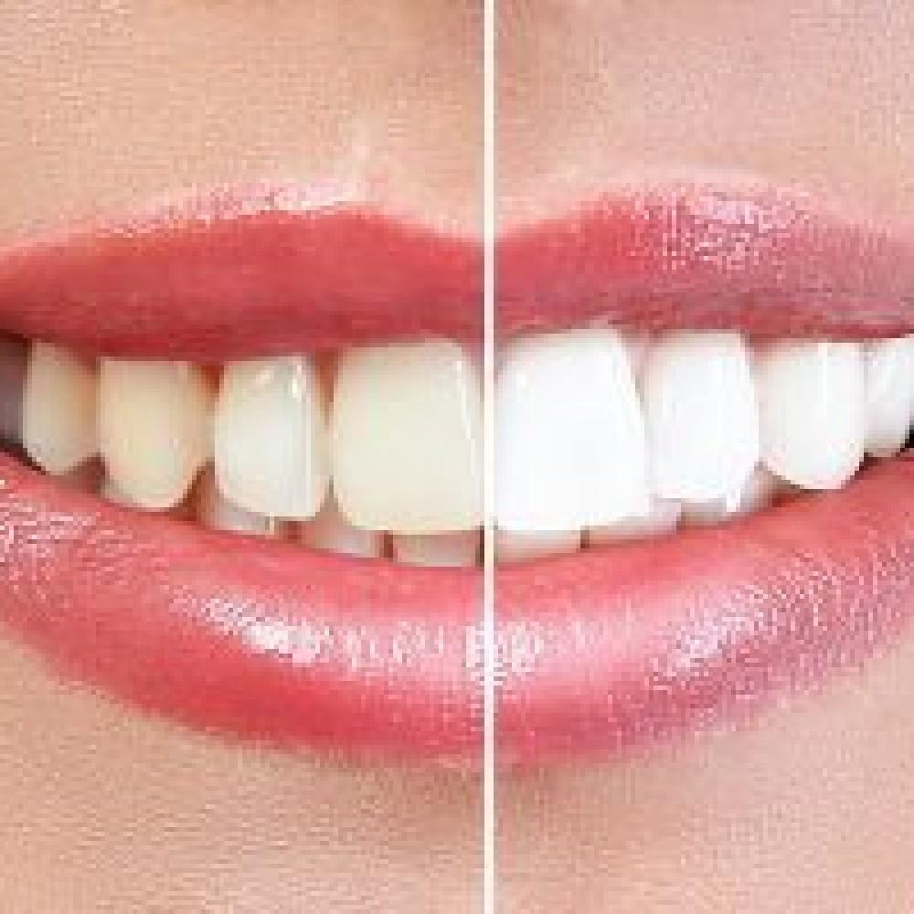 Is it true that bleaching destroys the enamel of my teeth?