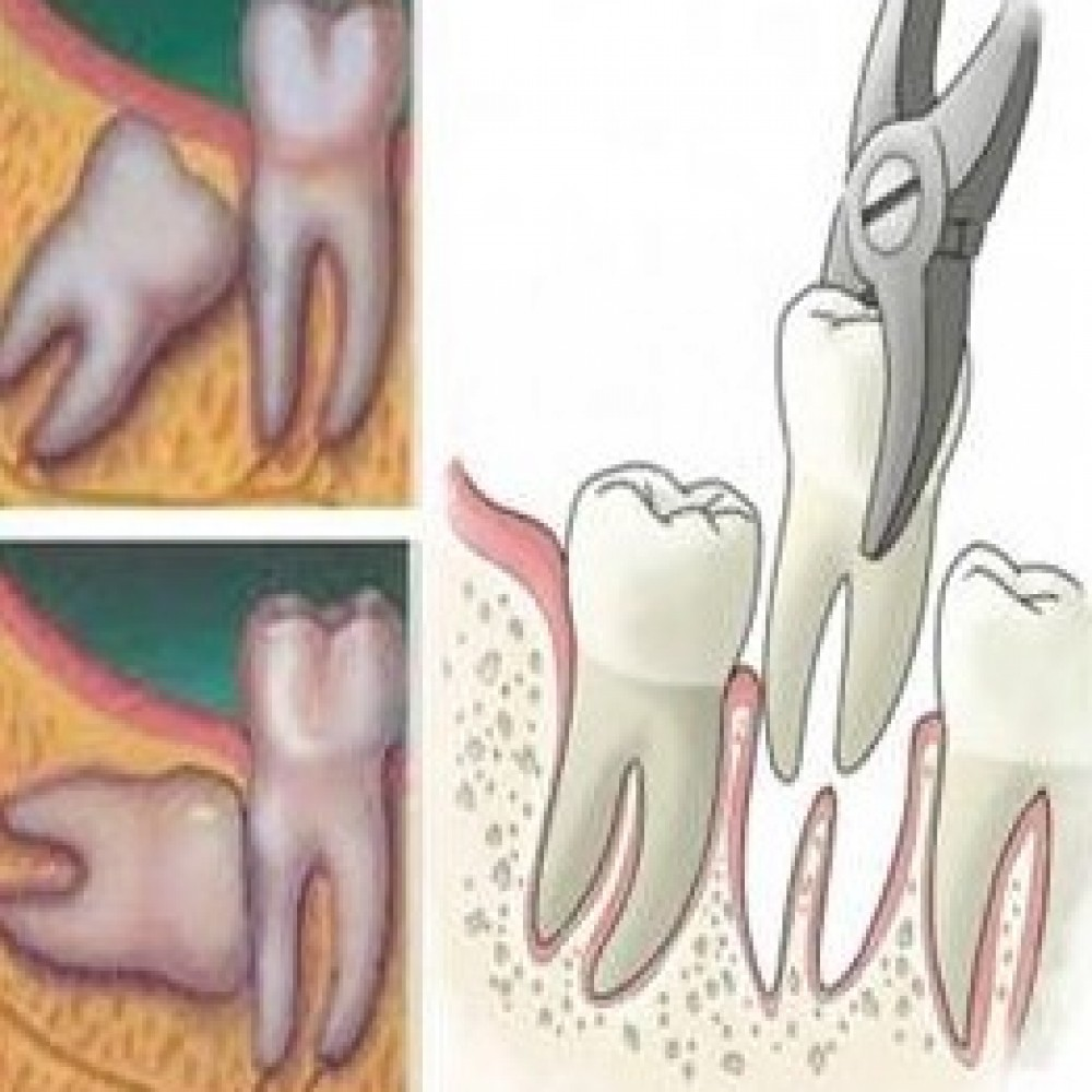 EXTRACTIONS-IMPACTED/SEMI- IMPACTED WISDOM TEETH