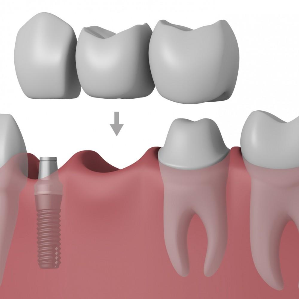 Γέφυρα, μερική οδοντοστοιχία ή εμφύτευμα;
