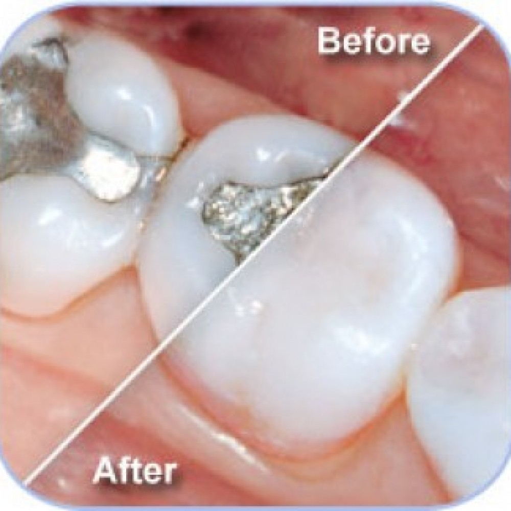 Is the filling with composite resin (white) or an amalgam (metallic) better?