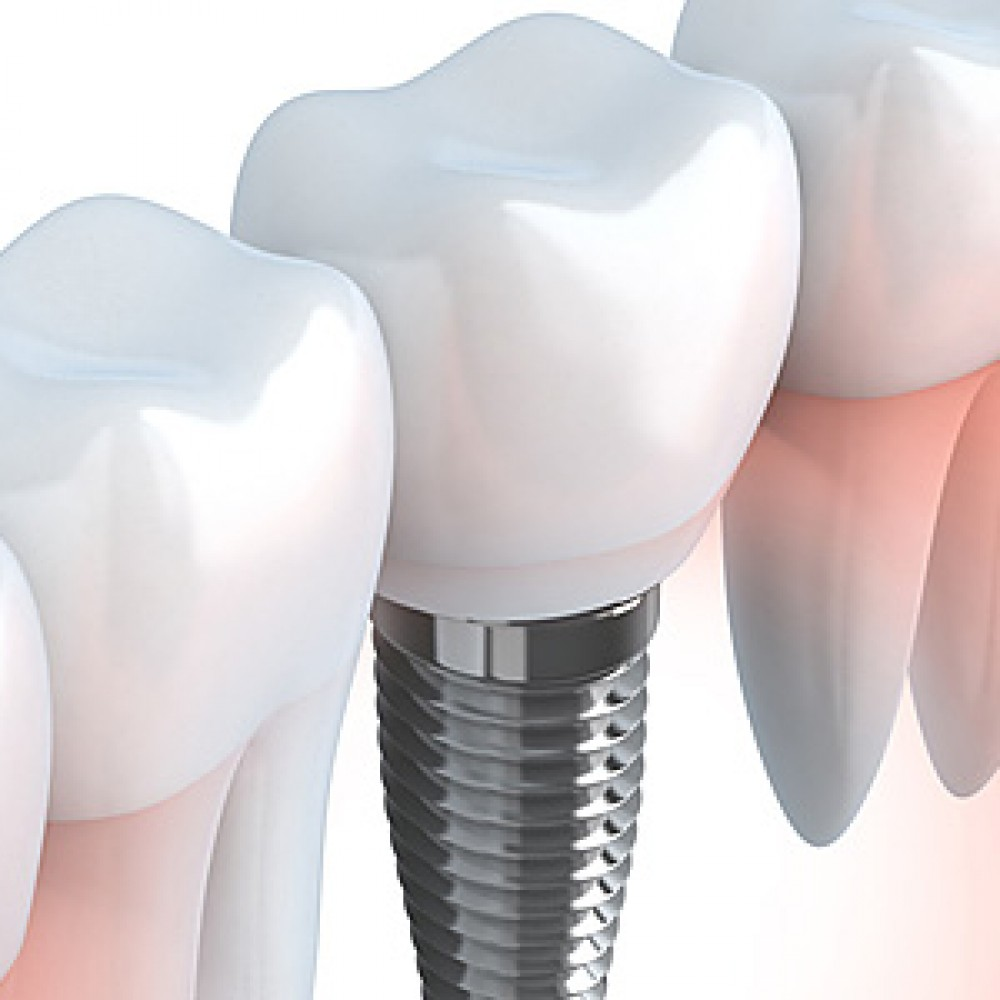 What is a dental implant and why is the periodontist considered as the best suited person for its placement?