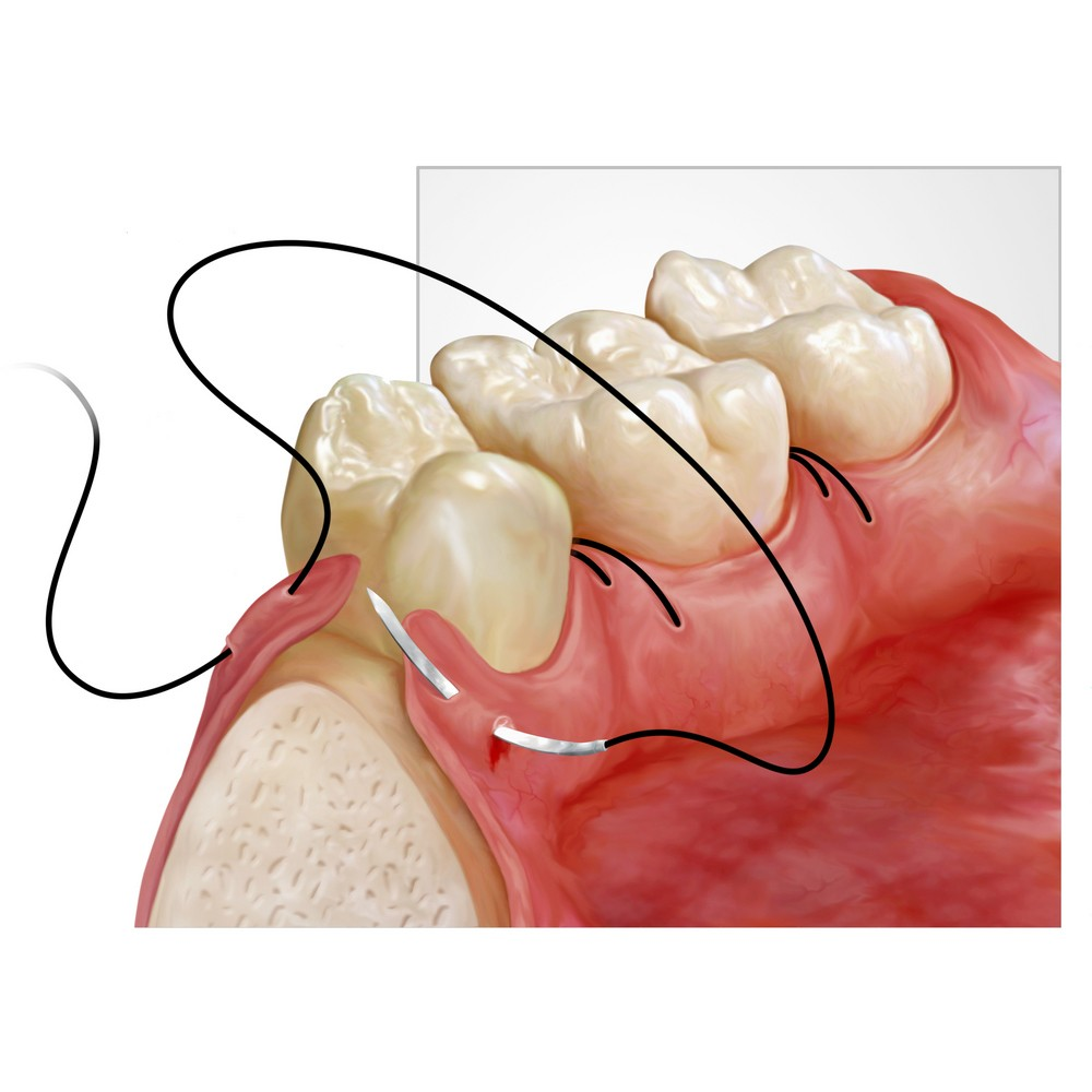GINGIVOPLASTY- GINGIVECTOMY – AESTHETICS OF THE PERIODONTIUM