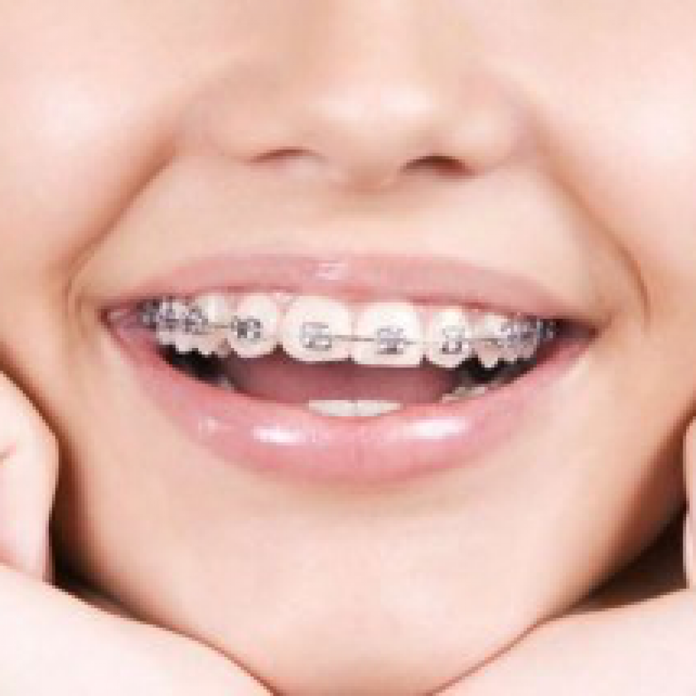 At what age should my child visit an orthodontist?