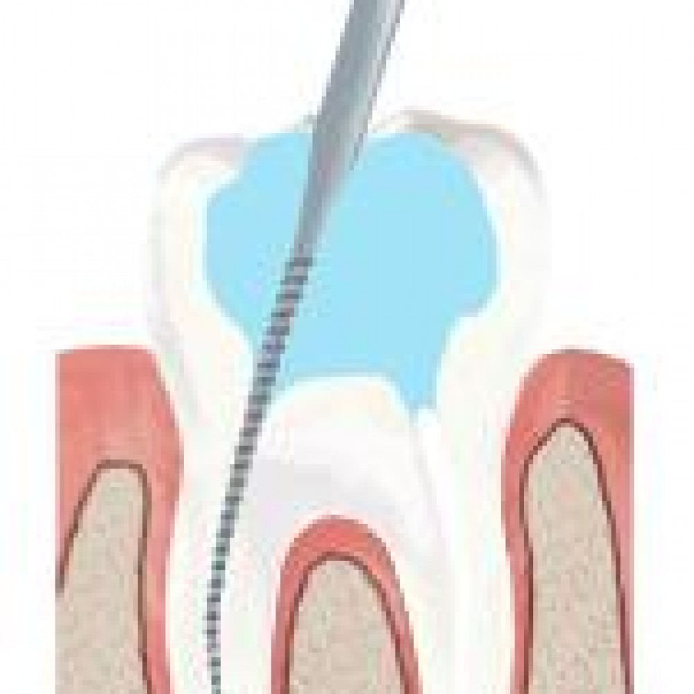 What is endodontic treatment?
